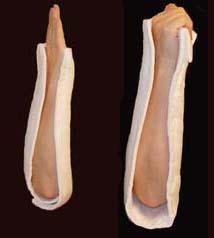 elbowspling
